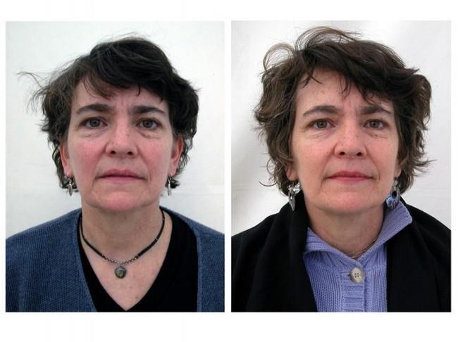 Antes e Depois da Meditação (4)