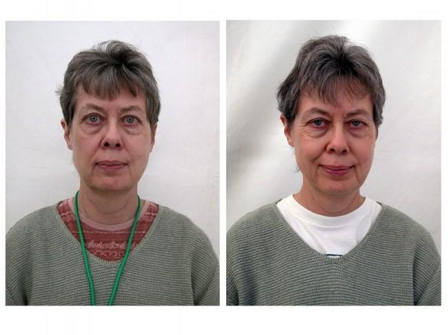 Antes e Depois da Meditação (2)