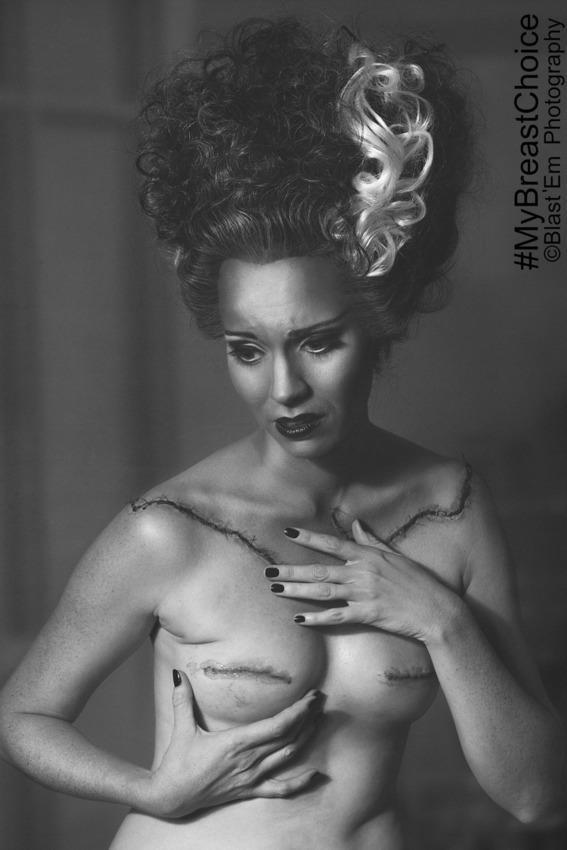 my-breast-choice-2
