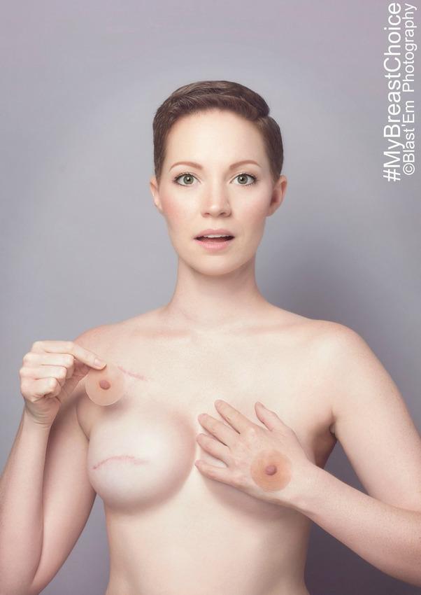 my-breast-choice-4