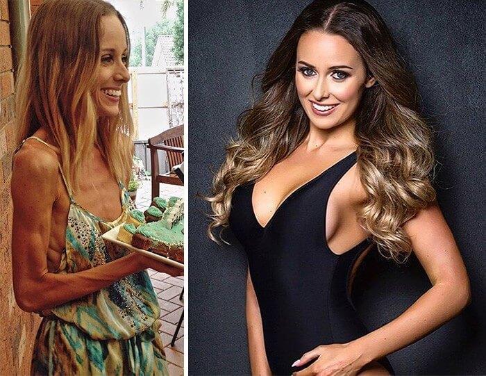 Anorexia Antes e Depois (10)