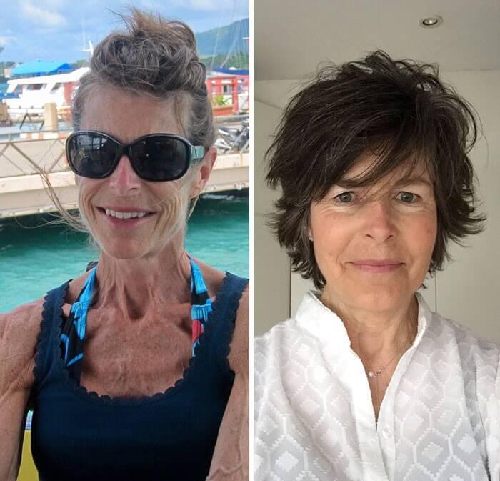 Anorexia Antes e Depois (12)