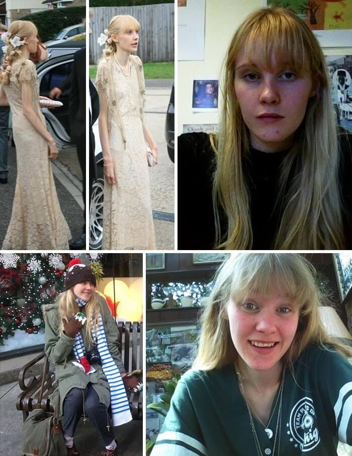 Anorexia Antes e Depois (14)