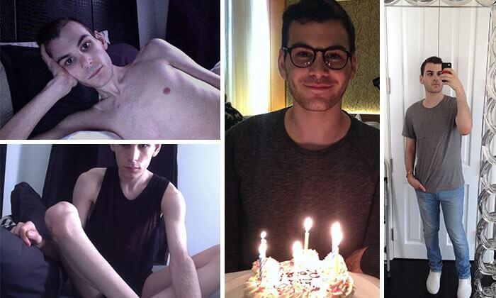 Anorexia Antes e Depois (15)