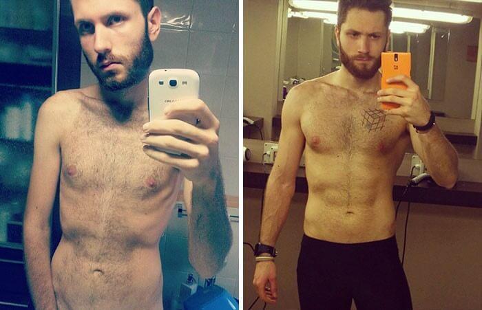 Anorexia Antes e Depois (17)