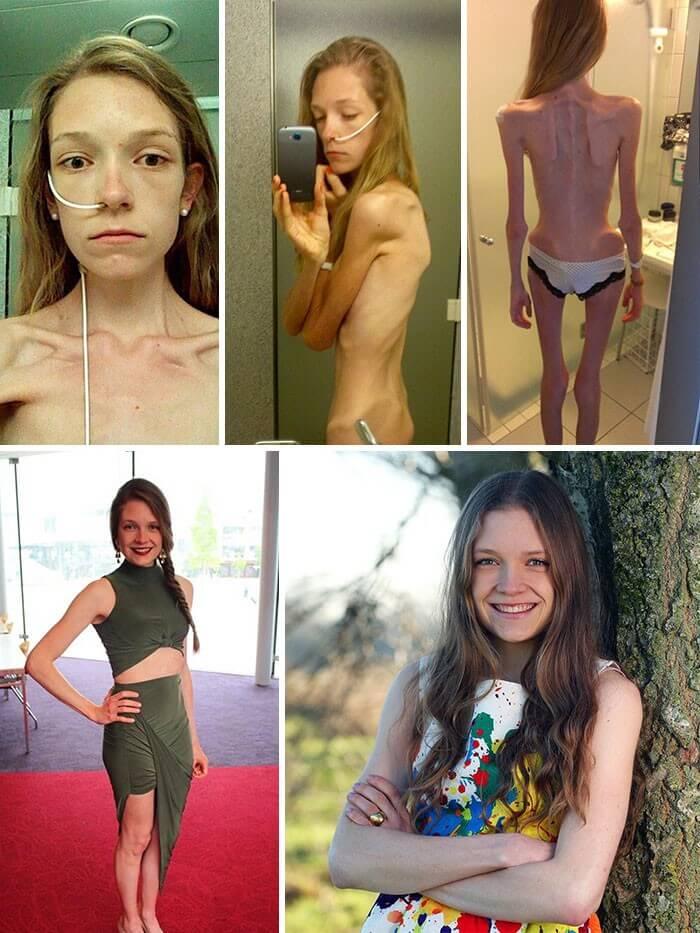 Anorexia Antes e Depois (2)