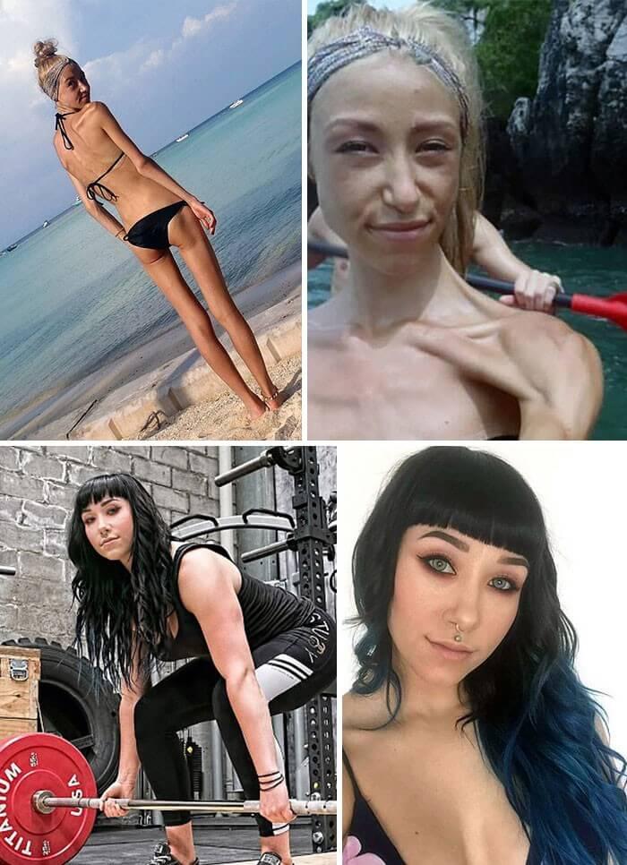 Anorexia Antes e Depois (21)