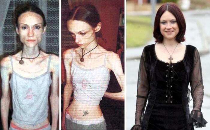 Anorexia Antes e Depois (23)