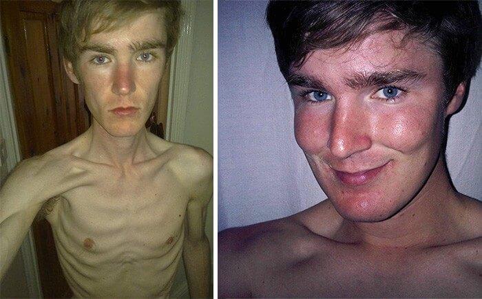 Anorexia Antes e Depois (25)