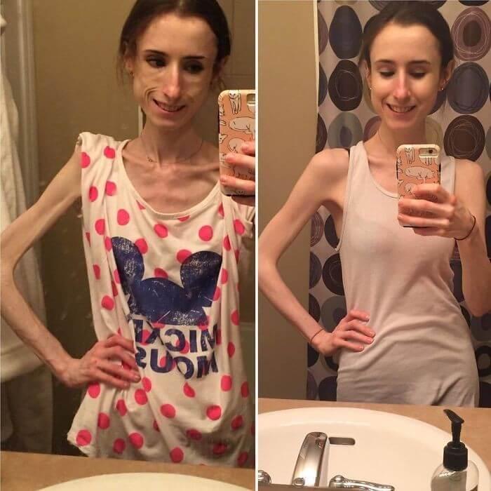Anorexia Antes e Depois (27)