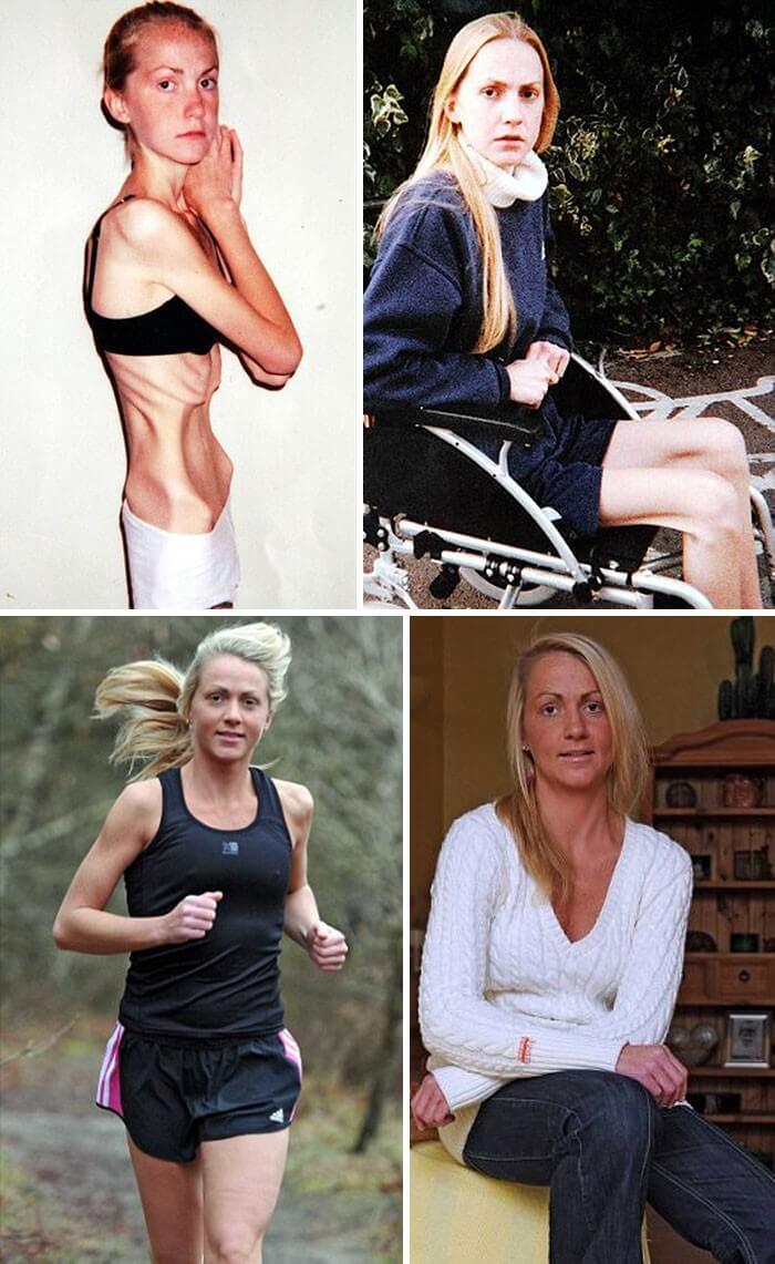Anorexia Antes e Depois (33)