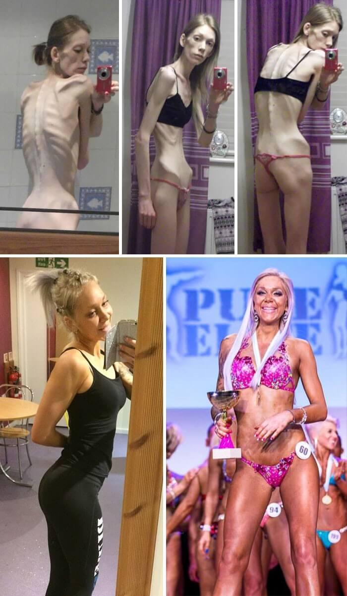 Anorexia Antes e Depois (34)