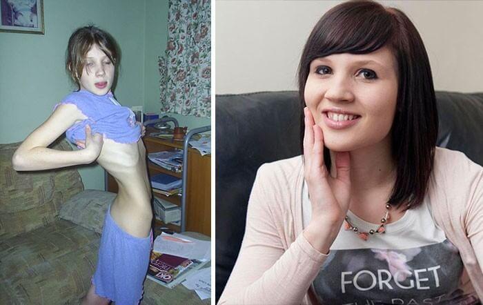 Anorexia Antes e Depois (37)