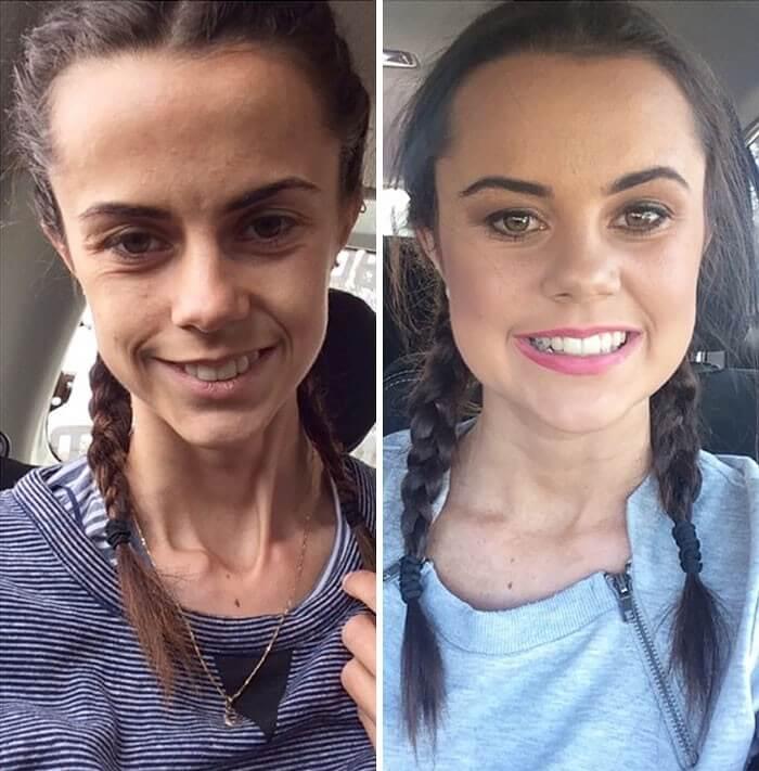 Anorexia Antes e Depois (38)