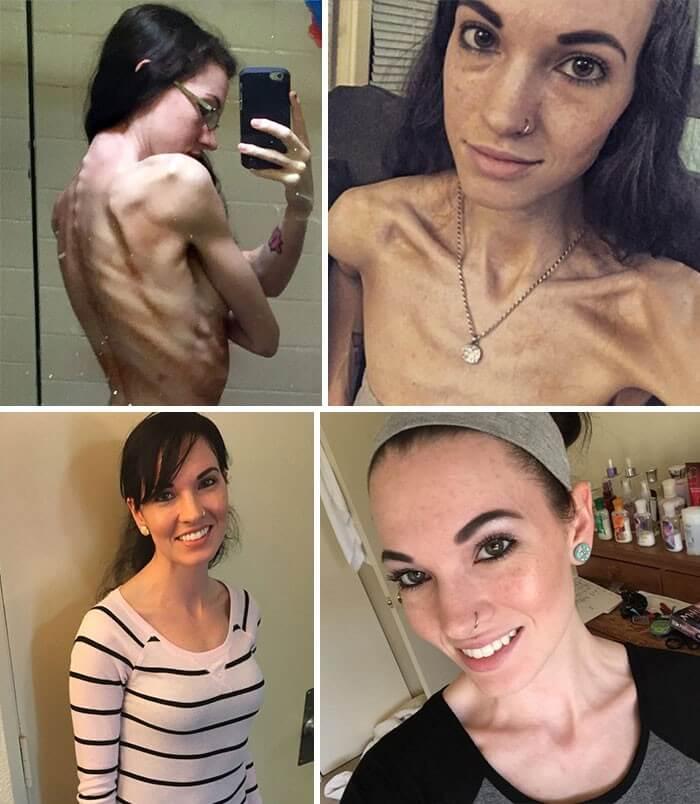 Resultado de imagem para Antes e depois- anorexia nervosa