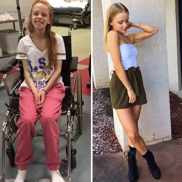 Anorexia Antes e Depois (41)