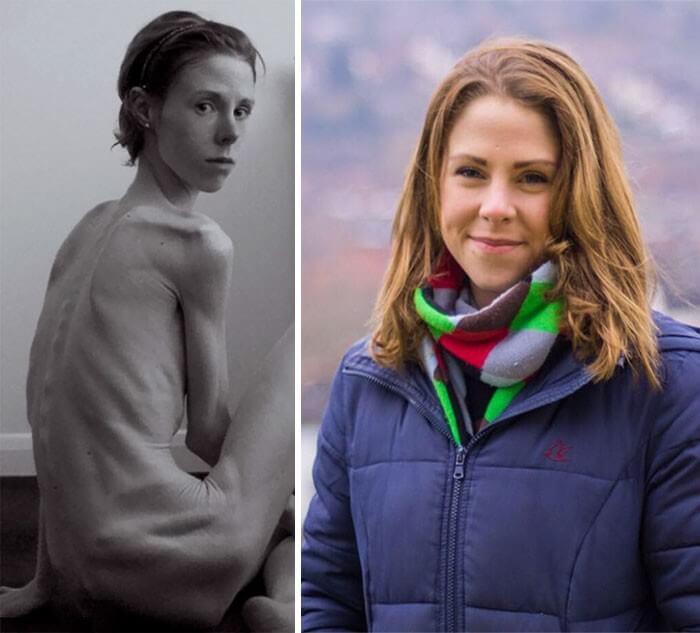 Anorexia Antes e Depois (42)