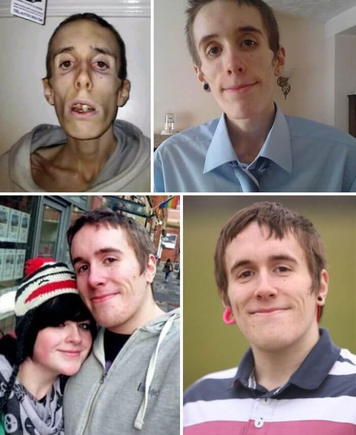 Anorexia Antes e Depois (5)