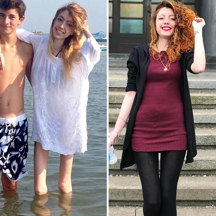 Anorexia Antes e Depois (50)