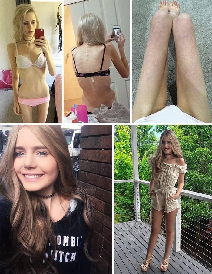 Anorexia Antes e Depois (7)