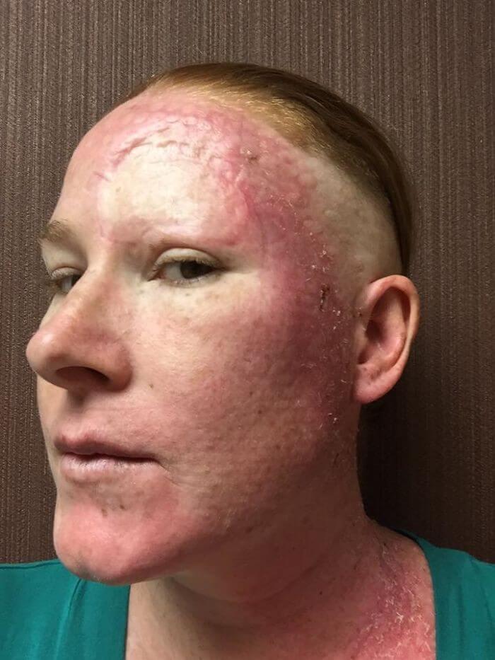 Câncer de Pele - Bethany (10)