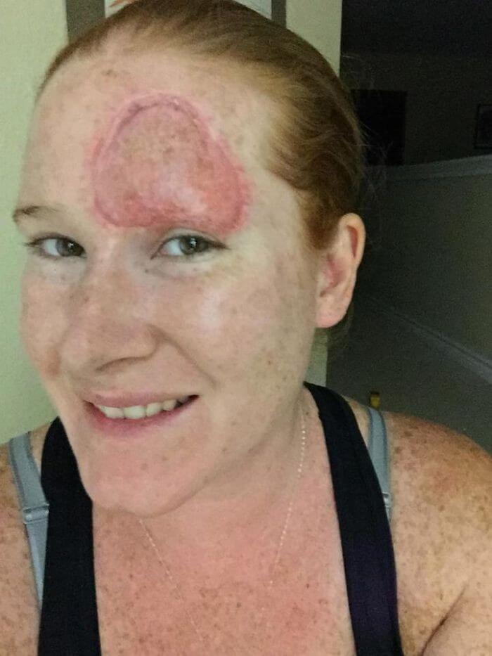 Câncer de Pele - Bethany (12)