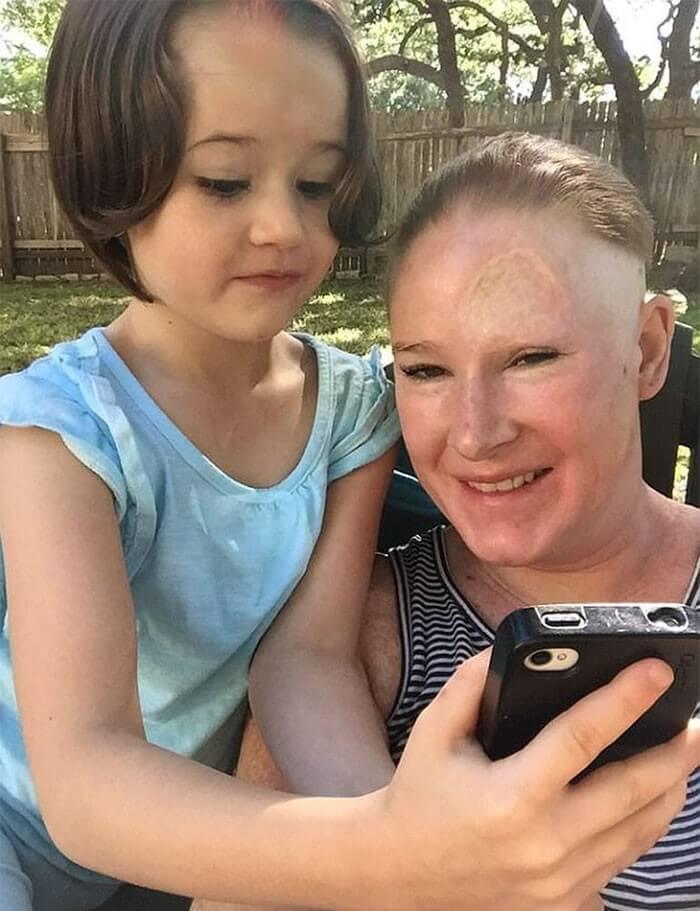 Câncer de Pele - Bethany (13)