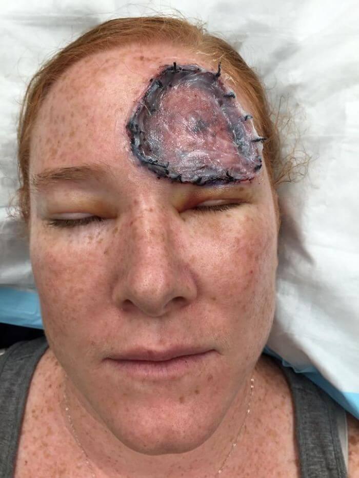 Câncer de Pele - Bethany (7)