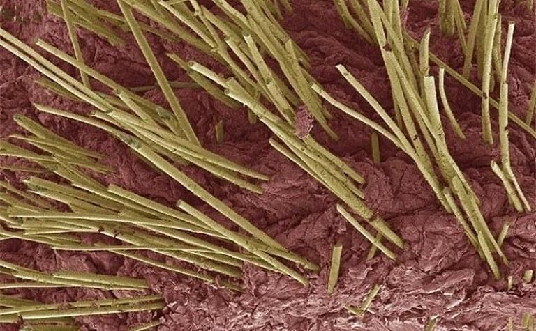 Corpo Humano - Fotos Microscópio (18)