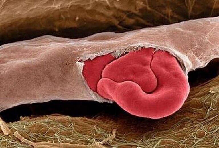 Corpo Humano - Fotos Microscópio (8)