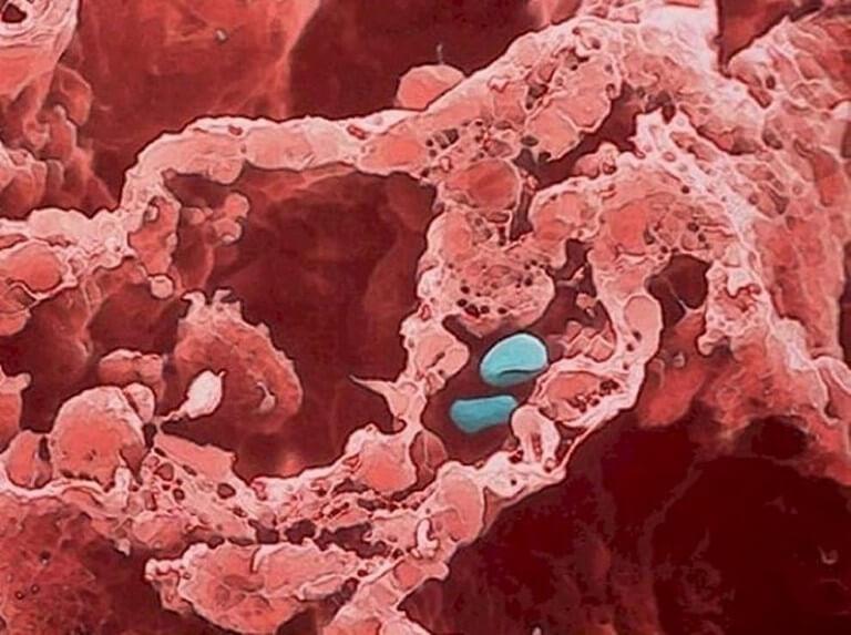 Corpo Humano - Fotos Microscópio (7)