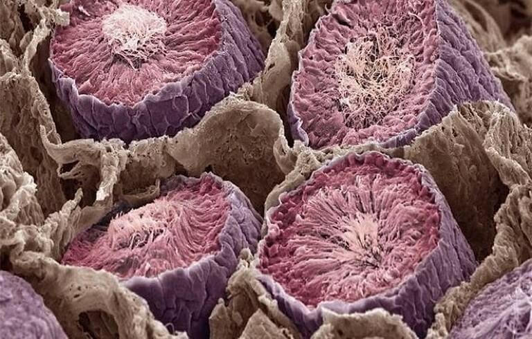 Corpo Humano - Fotos Microscópio (2)
