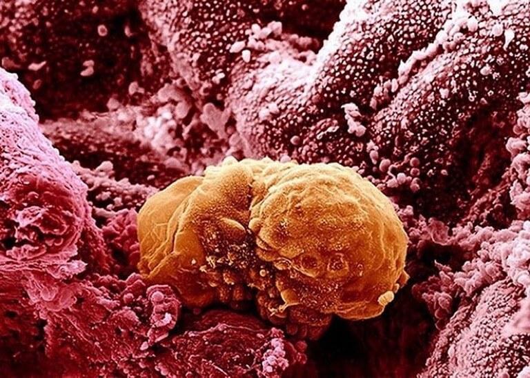 Corpo Humano - Fotos Microscópio (1)