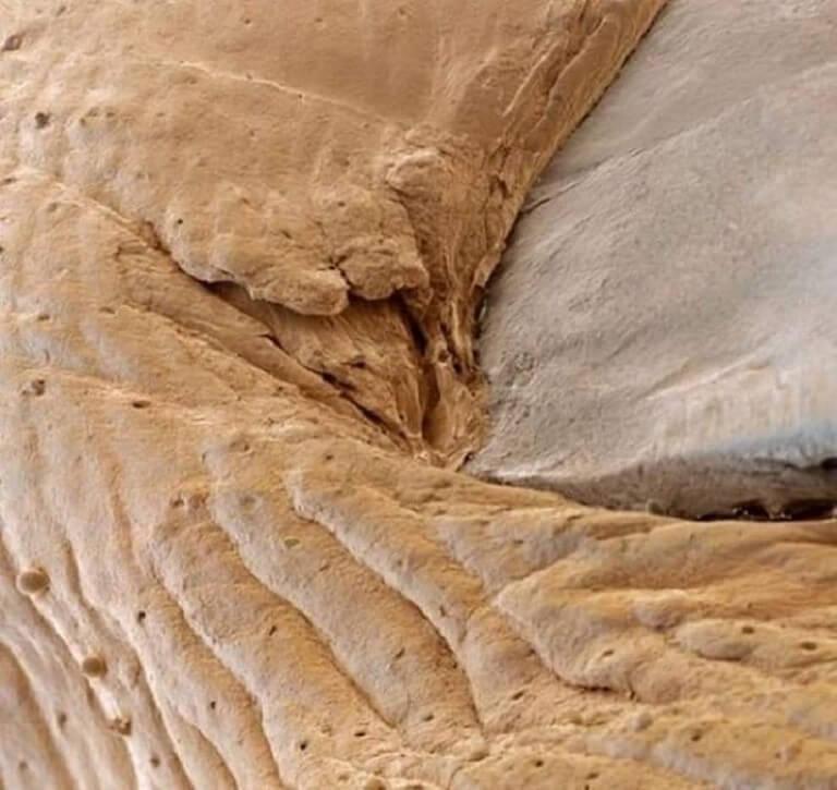 Corpo Humano - Fotos Microscópio (15)