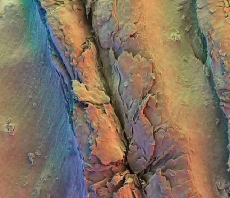 Corpo Humano - Fotos Microscópio (14)