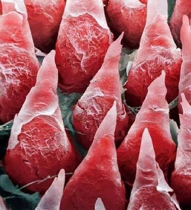 Corpo Humano - Fotos Microscópio (13)