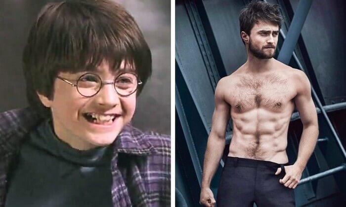 Atores Harry Potter Antes e Depois (1)