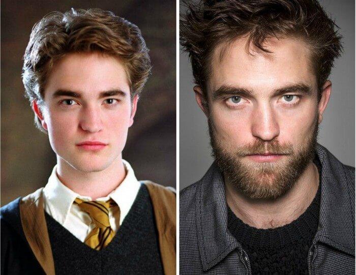 Atores Harry Potter Antes e Depois (14)