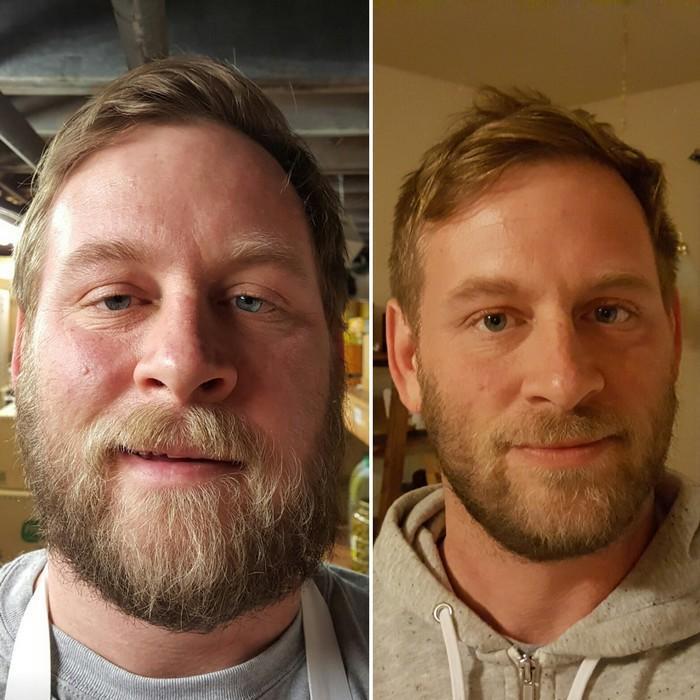 Antes e depois do alcoolismo (18)