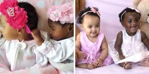 Estas gêmeas com cor de pele diferente são a nova sensação do Instagram