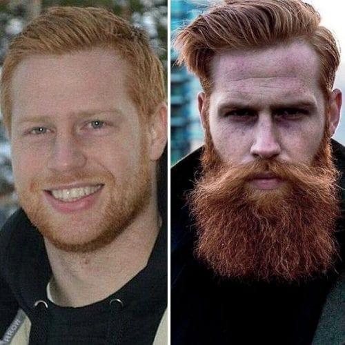 Barba mudou a vida desse homem (7)